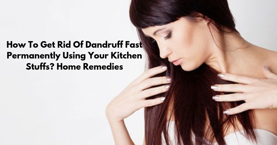 How To Get Rid Of Dandruff Fast Permanently Using Your Kitchen Stuffs? Home Remedies