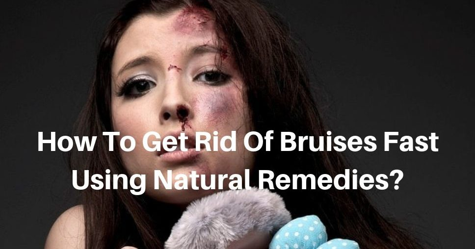 How To Get Rid Of Bruises Fast Using Natural Remedies_